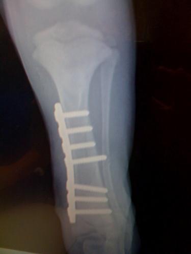 Surgery_2
